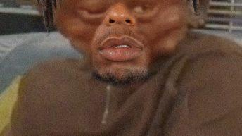 Nate Robinson swollen face Martin meme